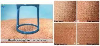Pixelado de la piel en un tratamiento de resurfacing láser: máximo control y precisión.