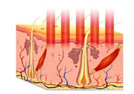 Aplicación del láser: Podemos modular la profundidad a la que actúa el láser para que la renovación de piel sea más o menos superficial.