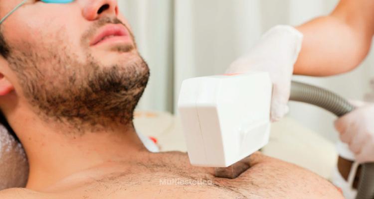 db2761cf21ca2 La depilación láser también es para los hombres - Multiestetica.com