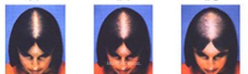 Кто вылечил выпадение волос отзывы